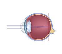 astigmatism myopia simplex