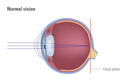 Vision Problems Myopia